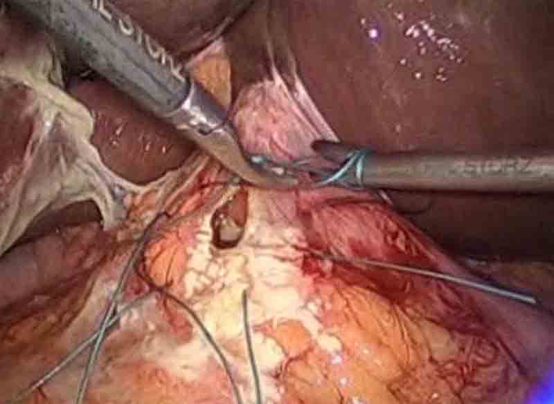 Laparoscopic Surgery Repair Of Perforated Gastric Ulcer