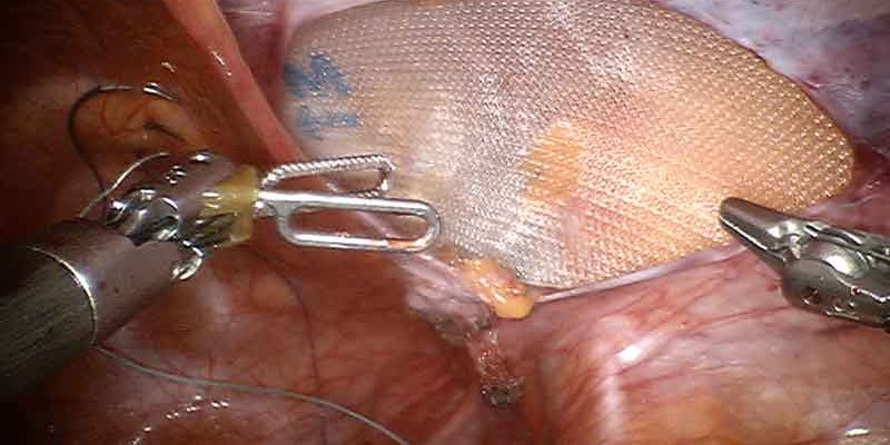 Is it safe to repair hernia during gall bladder surgery?