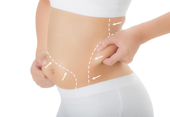 Liposuction or Lipo-Sculpture